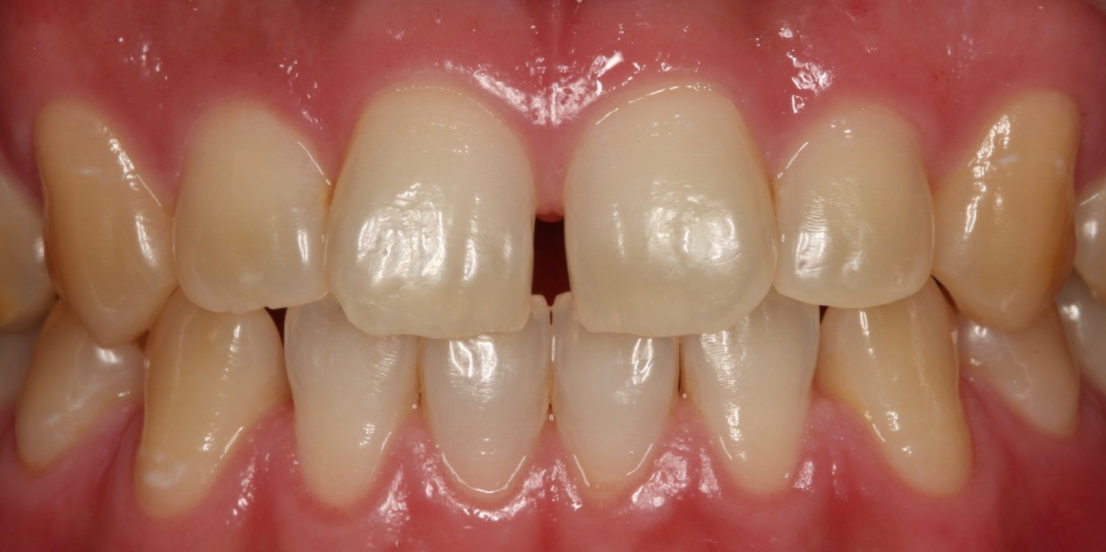 すきっ歯を治したい